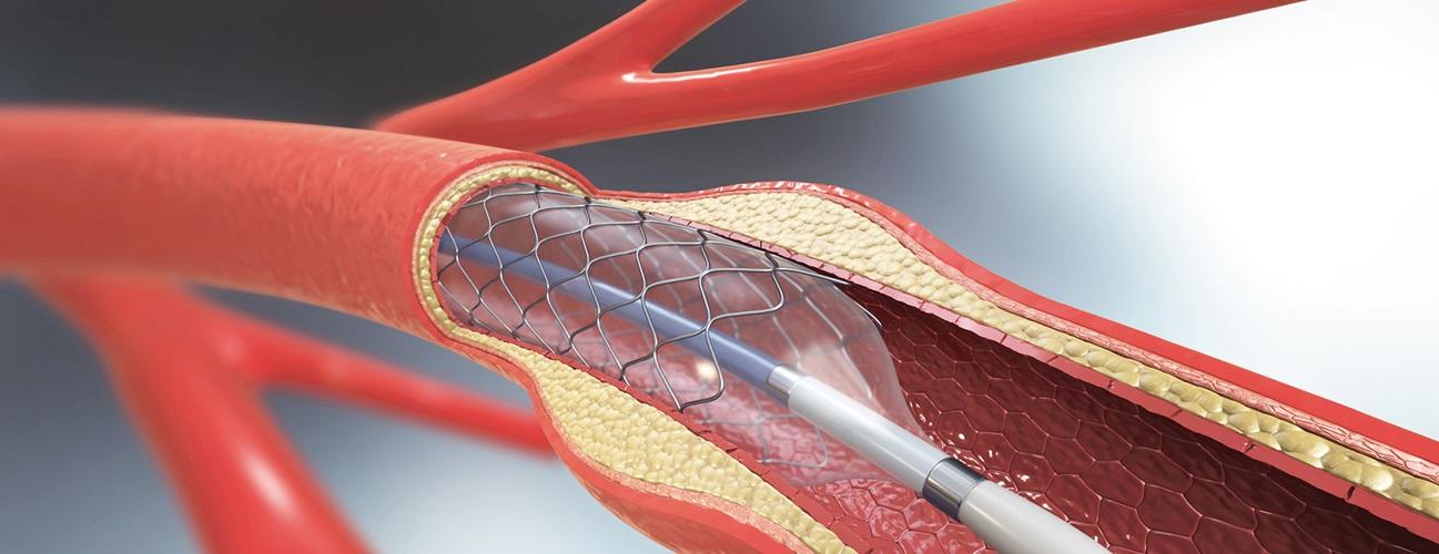 Ani kalp krizinde stent tedavisi
